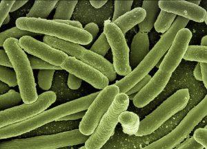 Legionellen unter dem Mikroskop